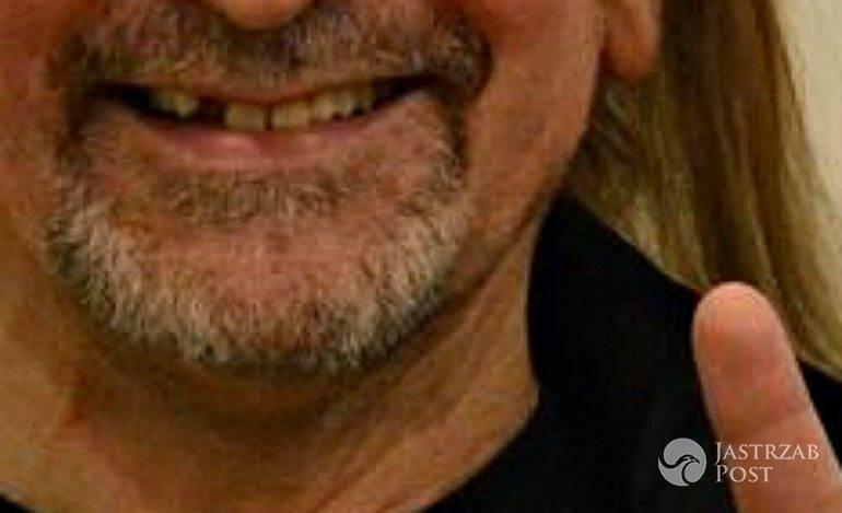 Marek Piekarczyk stracił zęba