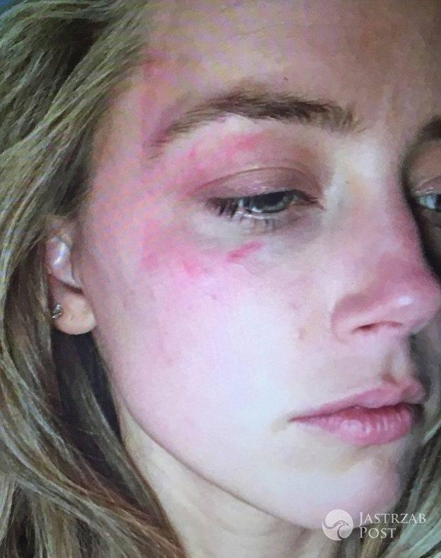 Amber Heard zostala pobita przez Johnny'ego Deppa?