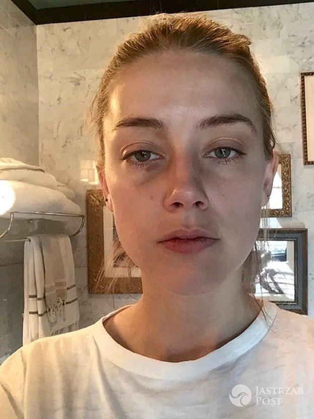 Posiniaczona Amber Heard