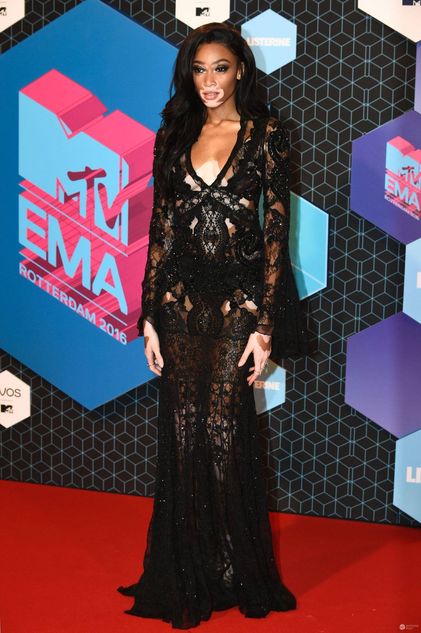 Winnie Harlow - MTV EMA 2016