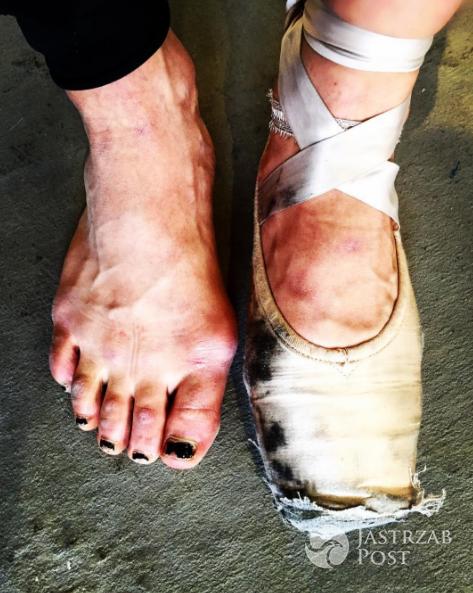 Ida Nowakowska pokazała zdjęcie stóp