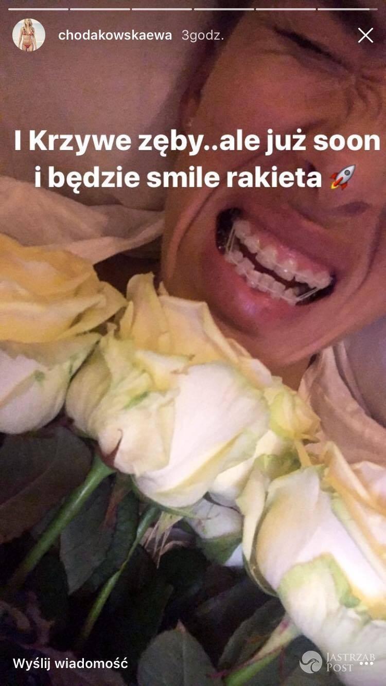 Ewa Chodakowska pokazała krzywe zęby - Instagram