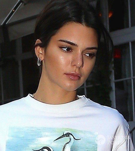 Większe usta Kendall Jenner