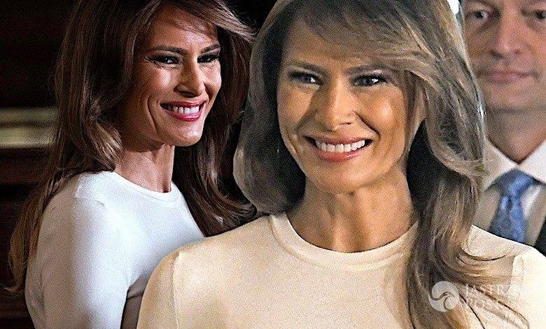 Melania Trump powiększyła piersi