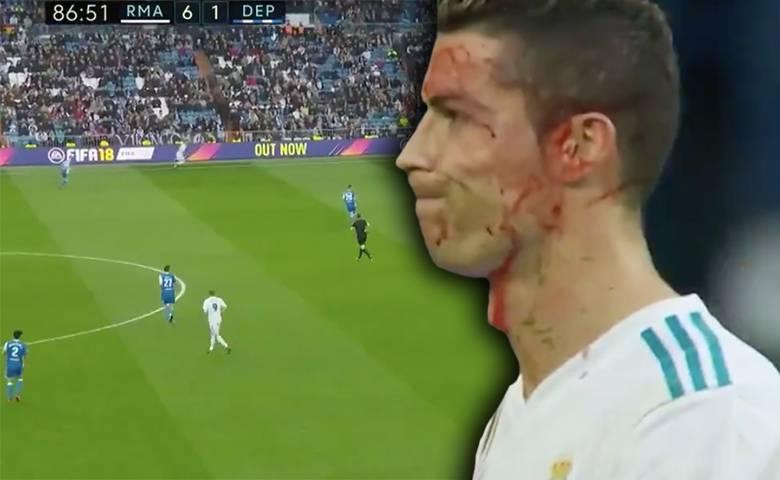 Ronaldo miał wypadek podczas ostatniego meczu