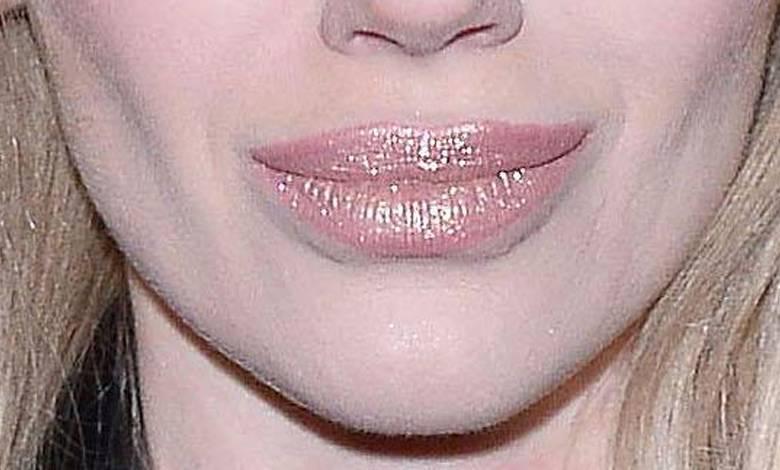 Joanna Majsterak powiększyła usta
