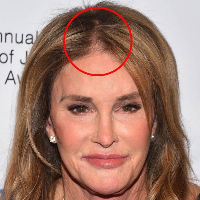 Caitlyn Jenner już nie wygląda tak pięknie! Dopadła ją typowo męska przypadłość zdjecie 1