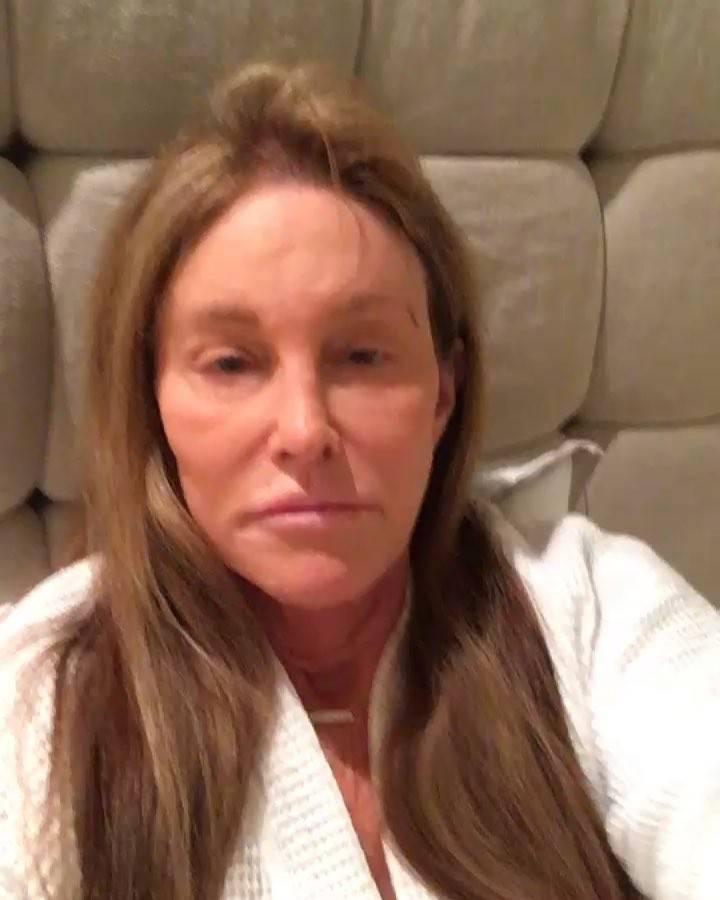 Caitlyn Jenner bez makijażu