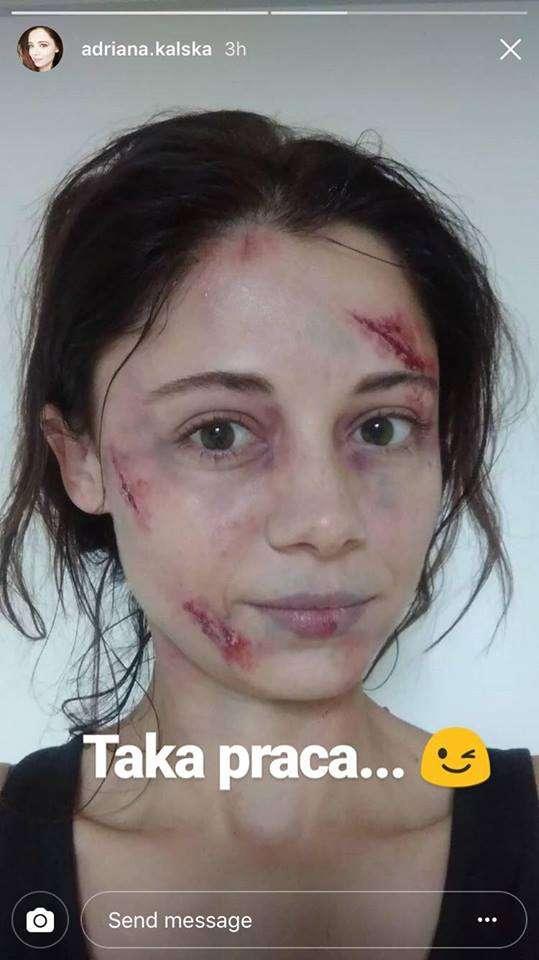 Adriana Kalska ma zmasakrowaną twarz