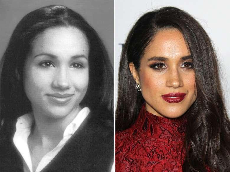 Meghan Markle przed i po operacji plastycznej