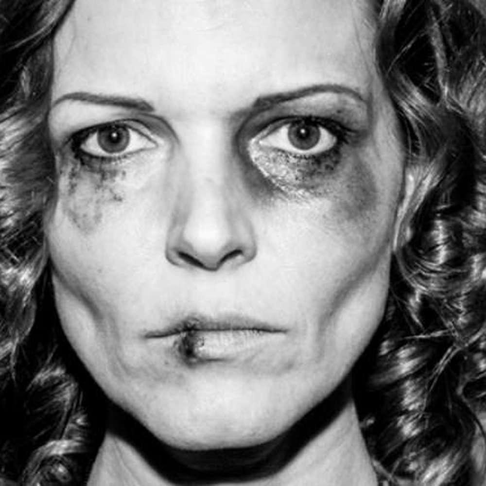 Zdjęcie pobitej Ilony Felicjańskiej w kampanii Nazywam się milion (2013 rok)
