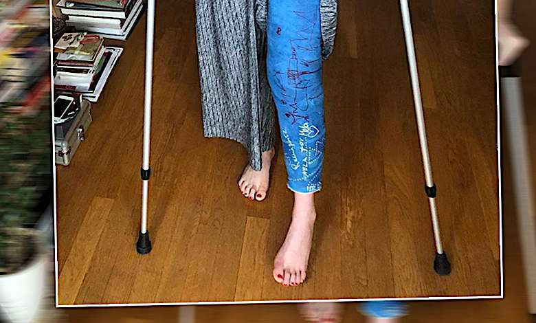 Mela Koteluk złamała nogę