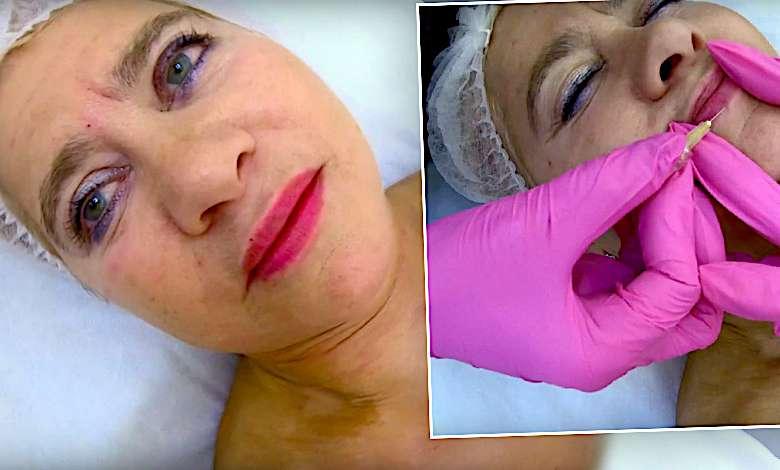 Izabela Kisio-Skorupa poprawiła twarz