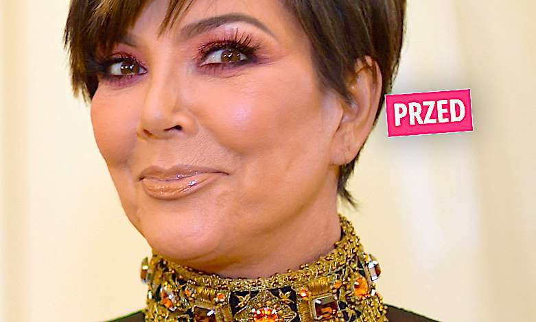 Kris Jenner metamorfoza