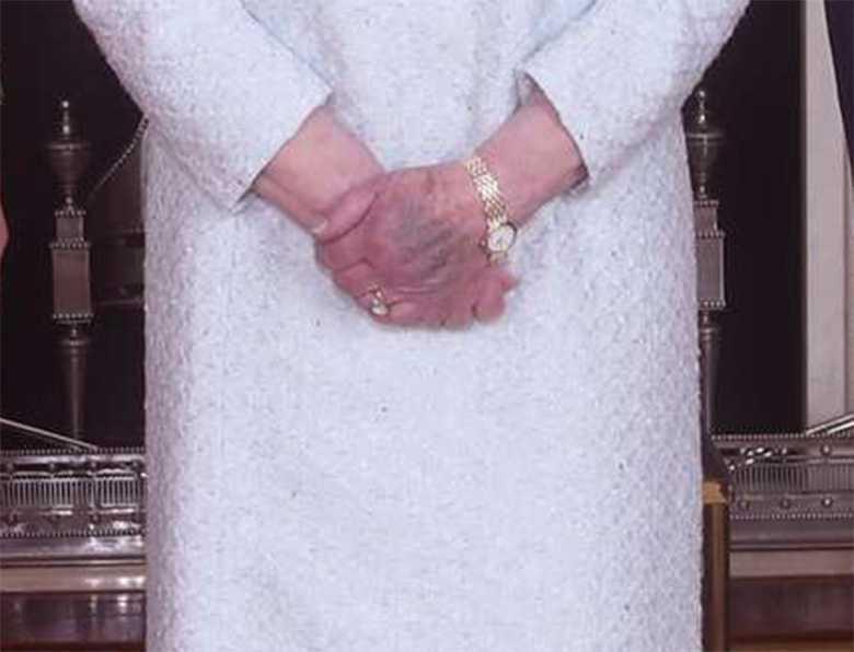 Królowa Elżbieta II z posiniaczonymi rękami