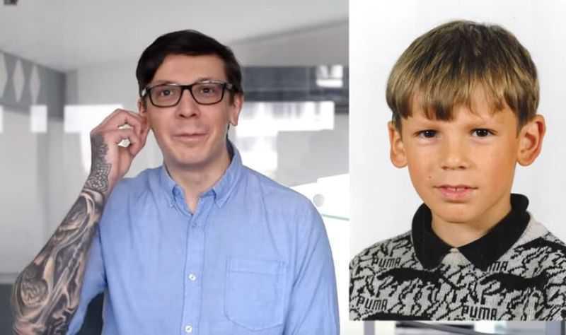 Paweł Grigoruk miał operację plastyczną uszu