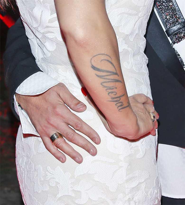 Dominika Tajner-Wiśniewska usuwa tatuaż