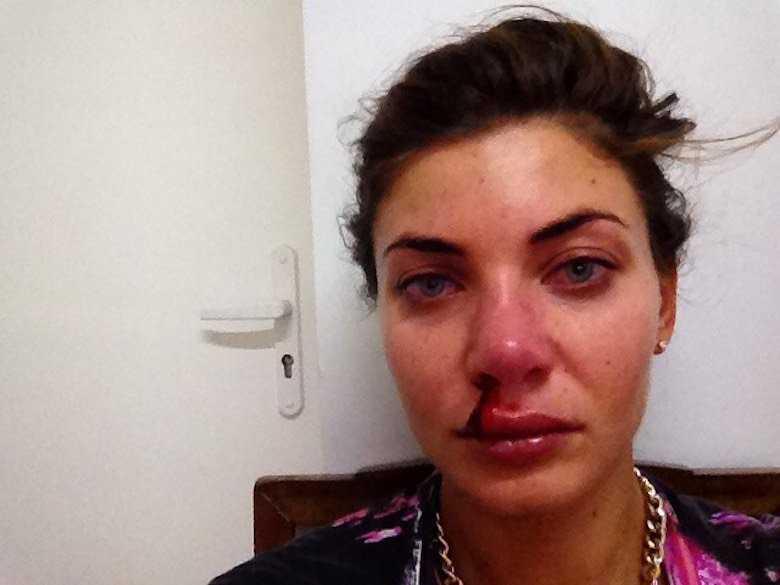 """Zdjęcie (1) Mąż pobił Wodziankę. Pokazała mocne zdjęcie: """"Był pod wpływem kokainy"""". Dowodem ma być szokujące nagranie [WIDEO]"""