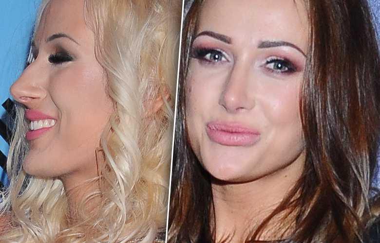 Eliza Trybała – operacja plastyczna nosa