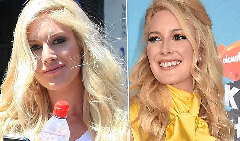 Heidi Montag - przed i po liftingu
