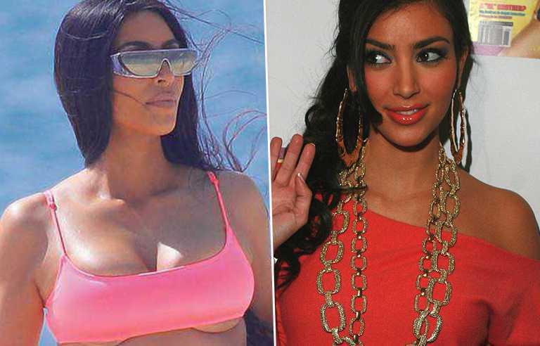 Kim Kardashian - po i przed operacją biustu