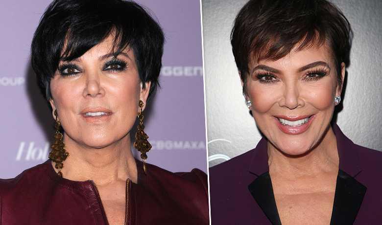 Kris Jenner - przed i po liftingu