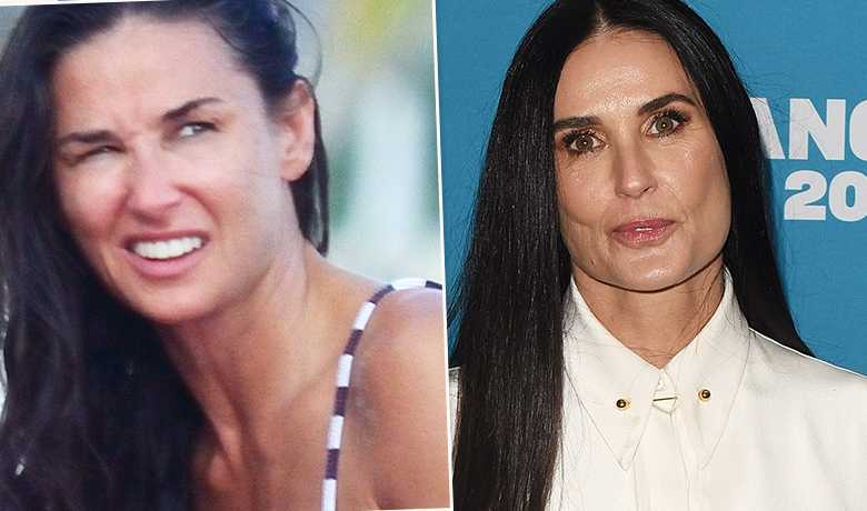 Demi Moore - przed i po liftingu