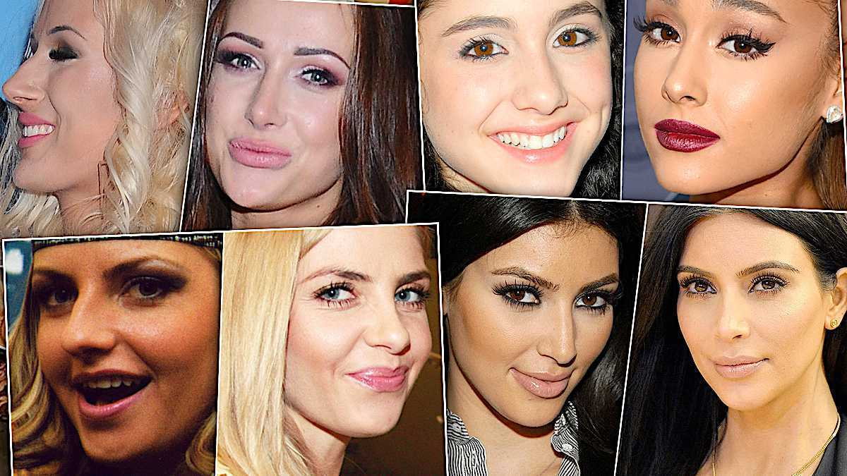 Operacje plastyczne nosa gwiazd