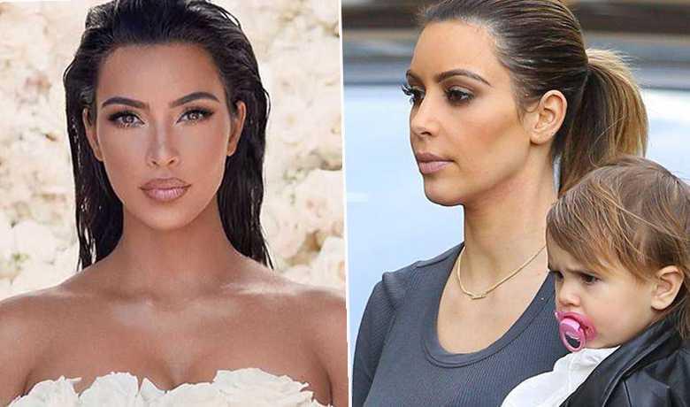 Kim Kardashian- po i przed korektą ust