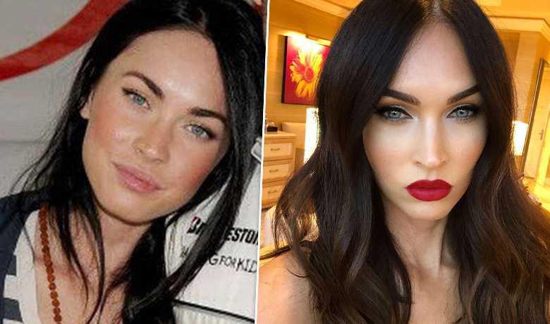 Megan Foxx- przed i po korekcie ust