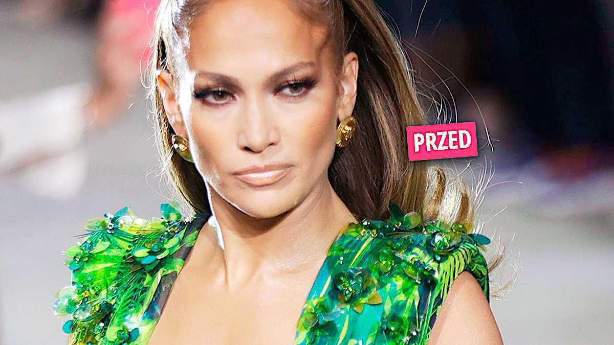 Jennifer Lopez zoperowała nos?