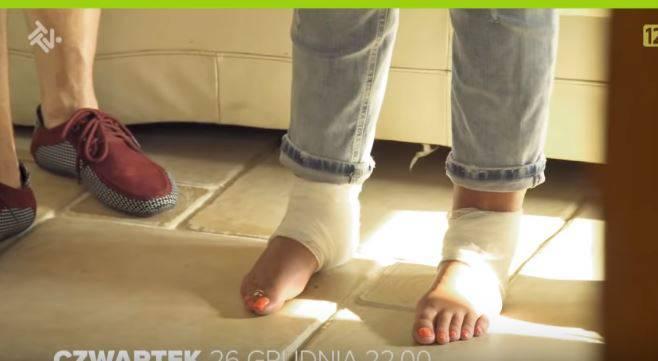 Nogi Dagmary Kaźmierskiej po wypadku