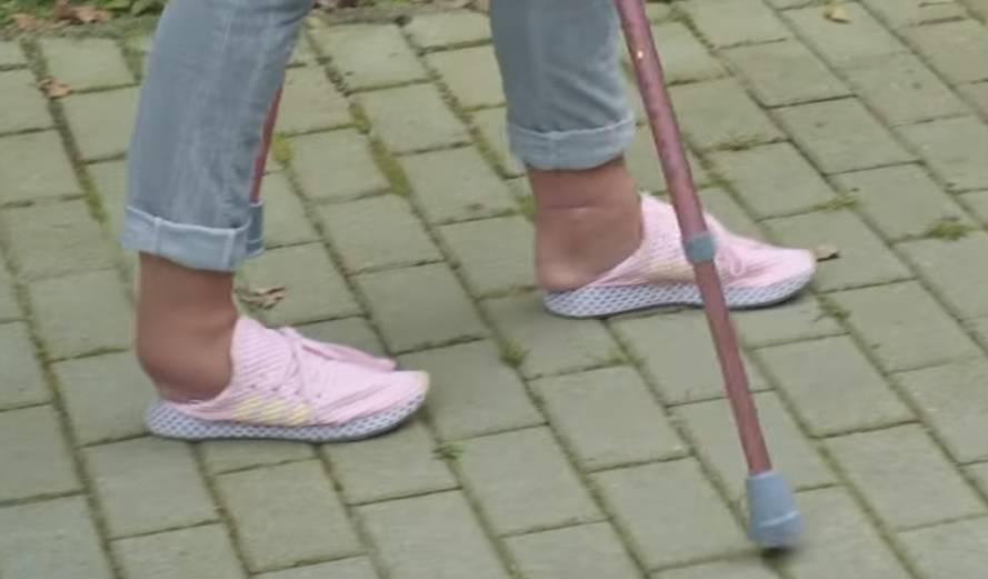Zdjęcie (2) Dagmara Kaźmierska pokazała swoje nogi po wypadku. Nie wygląda to dobrze