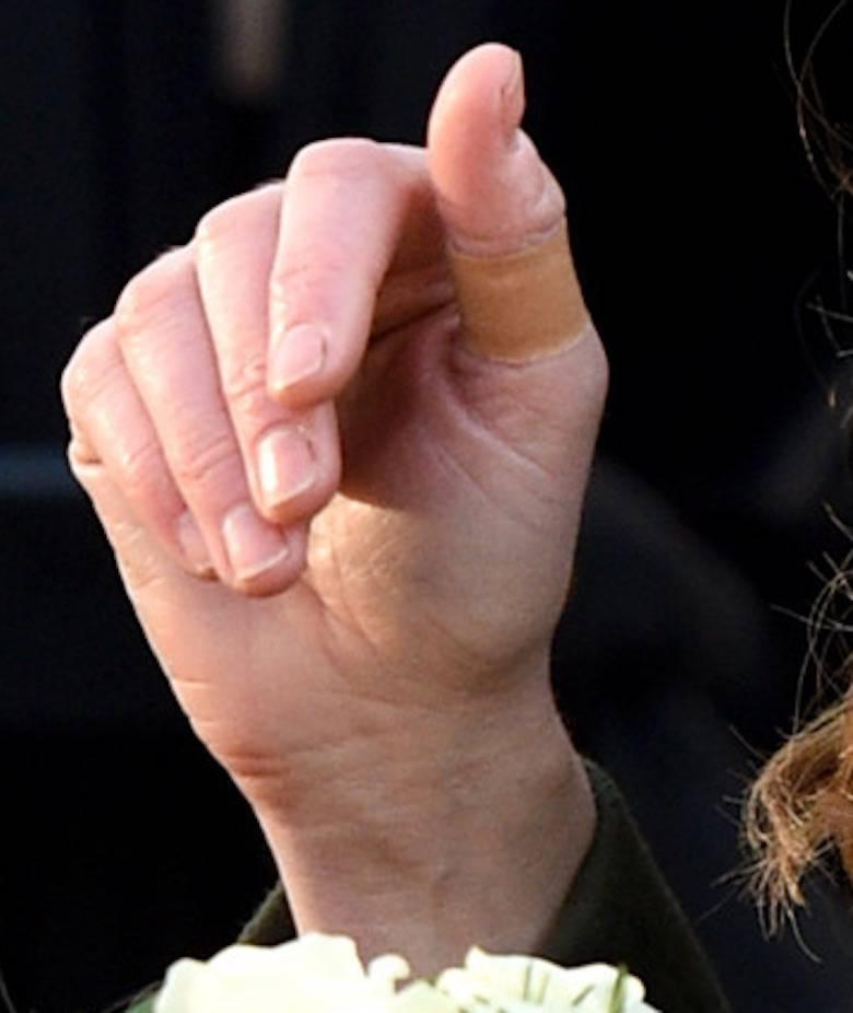 Księżna Kate z plastrem ochronnym na palcu