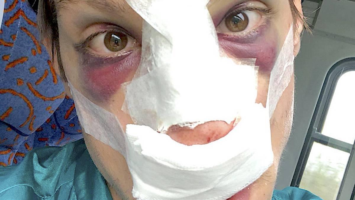 Eryk Klum junior – operacja nosa