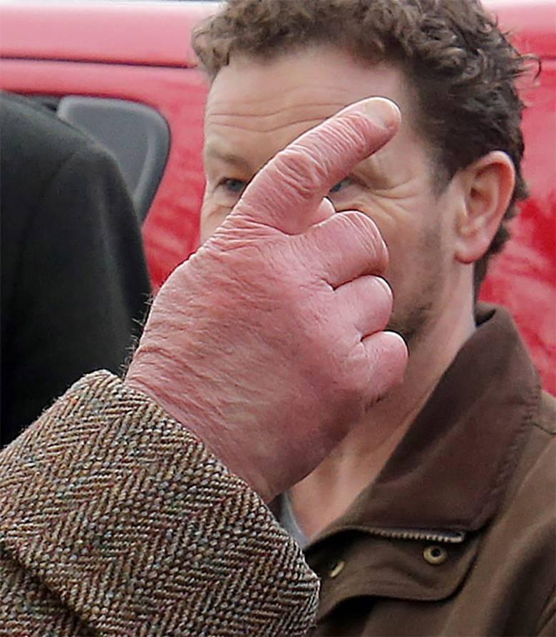 Książę Karol ma opuchnięte dłonie