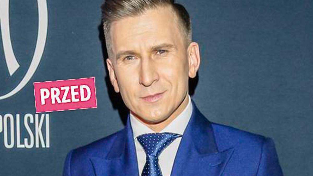 Tomasz Barański zgolił włosy