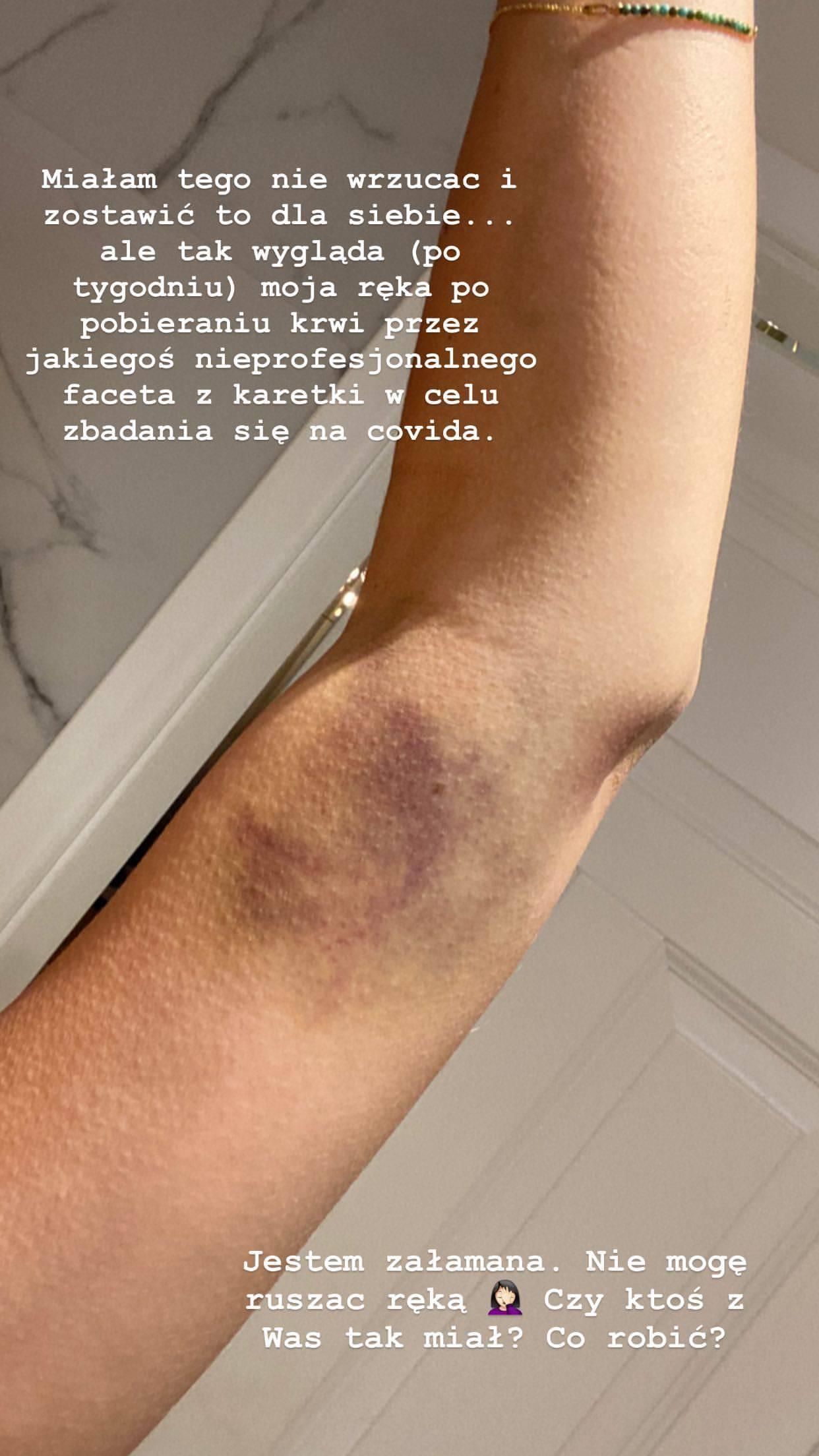 Julia Wieniawa ma gigantycznego siniaka na ręce