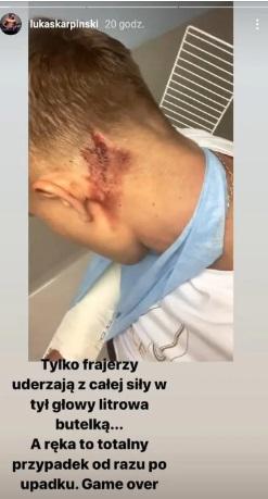 Łukasz Karpiński został napadnięty