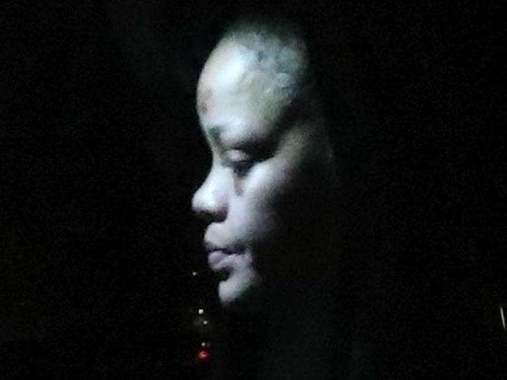 Rihanna siniaki na twarzy
