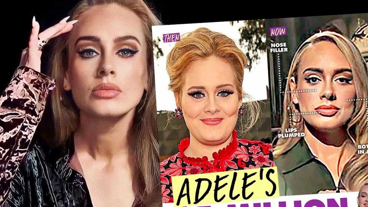 Adele miała operacje plastyczne?