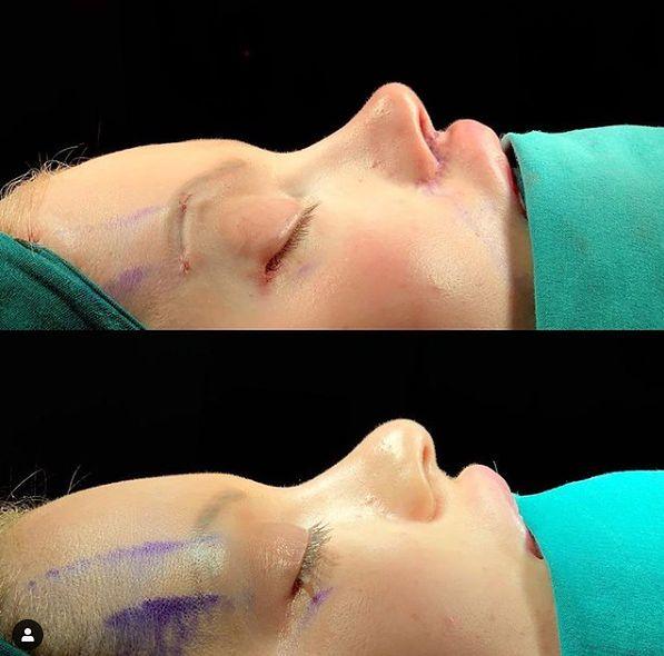 Ewelina Kubiak - operacja nosa