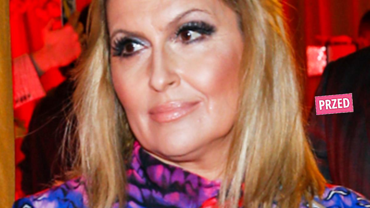 Katarzyna Skrzynecka z grzywką