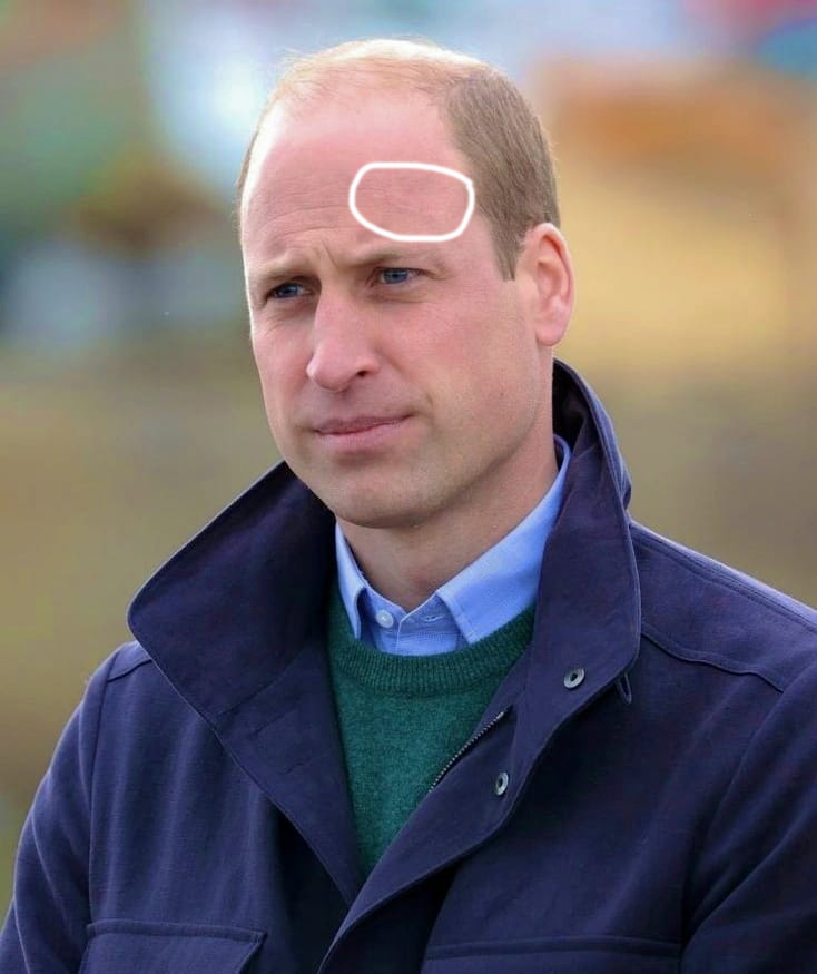 Blizna księcia Williama